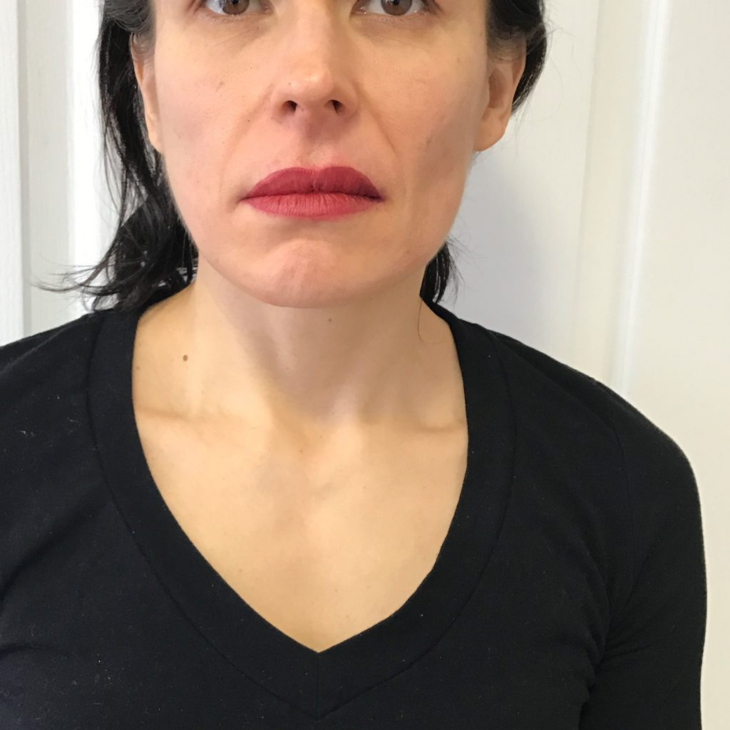 Correction on Uneven Lips.  Immediately After